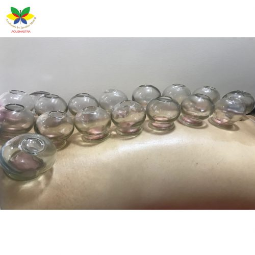 what is cupping