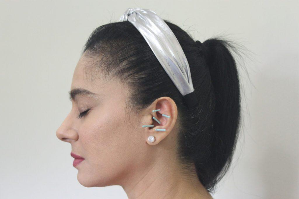 Auricular Treatment for Diabetes
