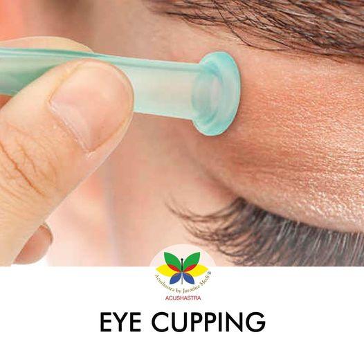 Eye Cupping - Acushastra By Jasmine Modi