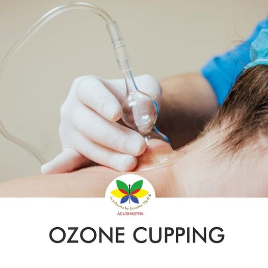 Ozone Cupping - Acushastra By JasmiNe Modi