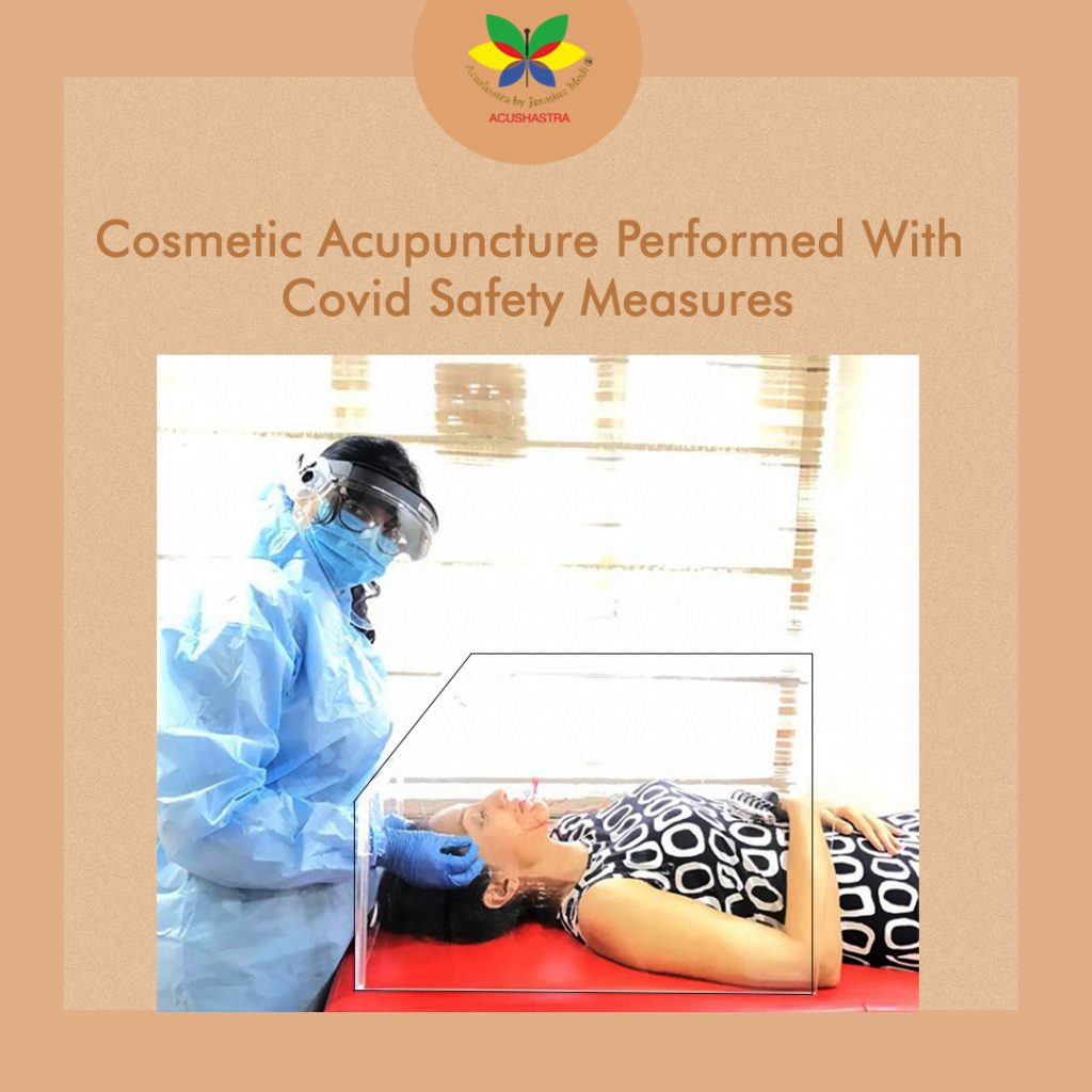 Cosmetic Acupuncture performed with covid safety measures.